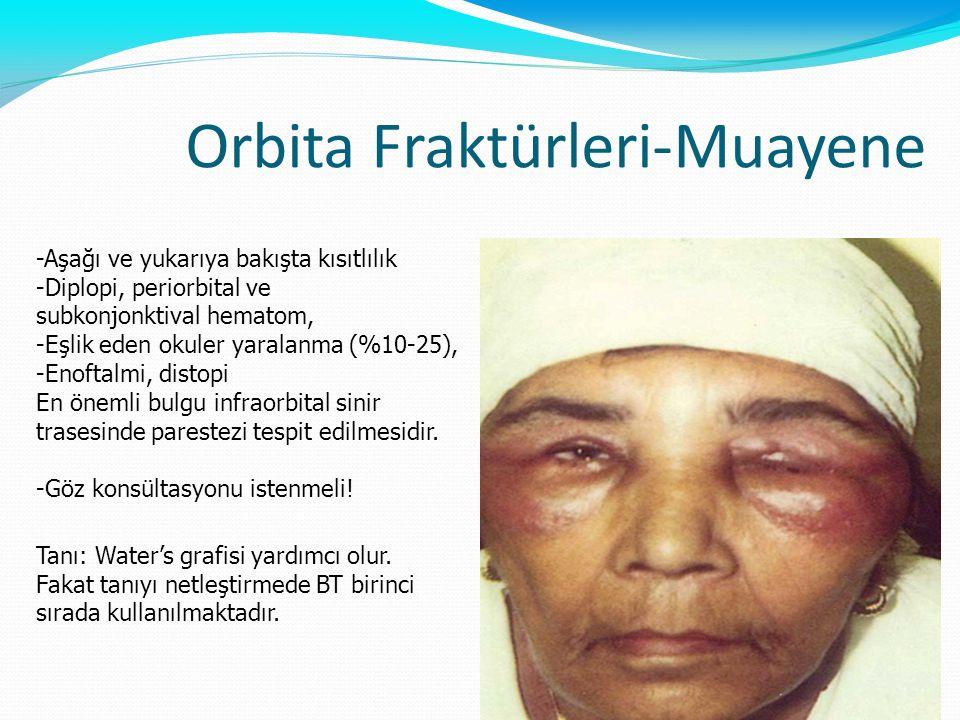 Orbita Fraktürleri-Muayene