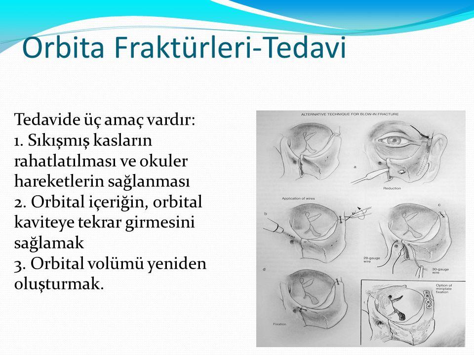 Orbita Fraktürleri-Tedavi