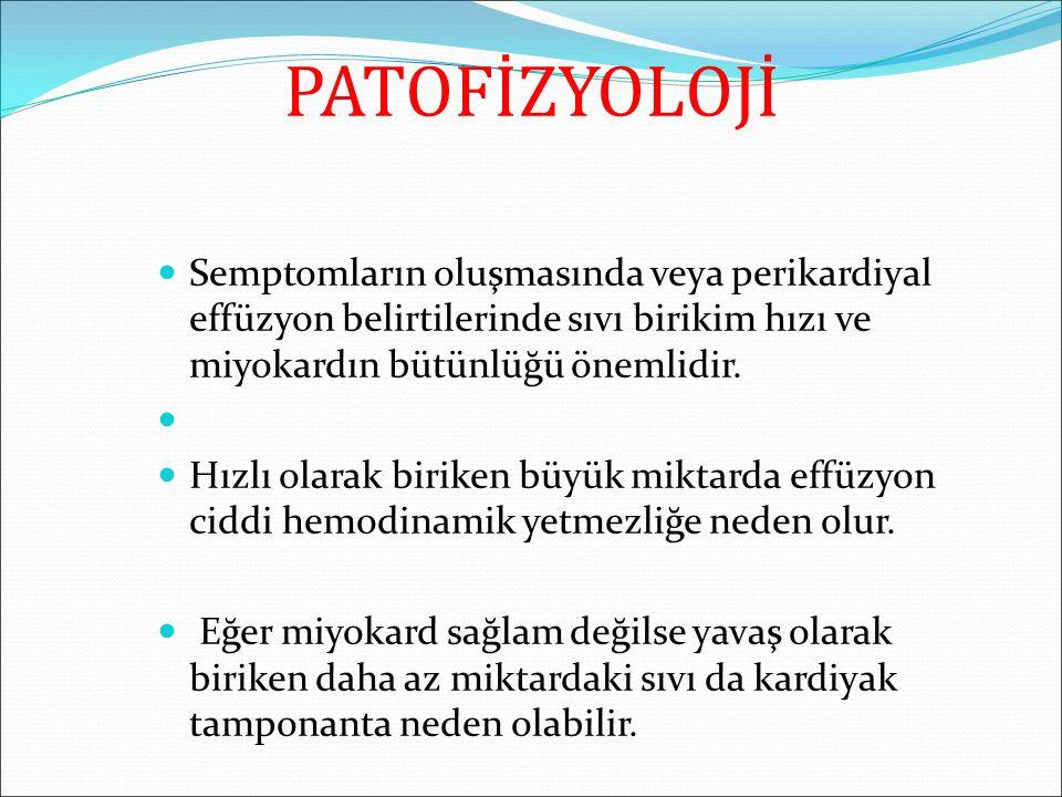 PATOFİZYOLOJİ Semptomların oluşmasında veya perikardiyal effüzyon belirtilerinde sıvı birikim hızı ve miyokardın bütünlüğü önemlidir.