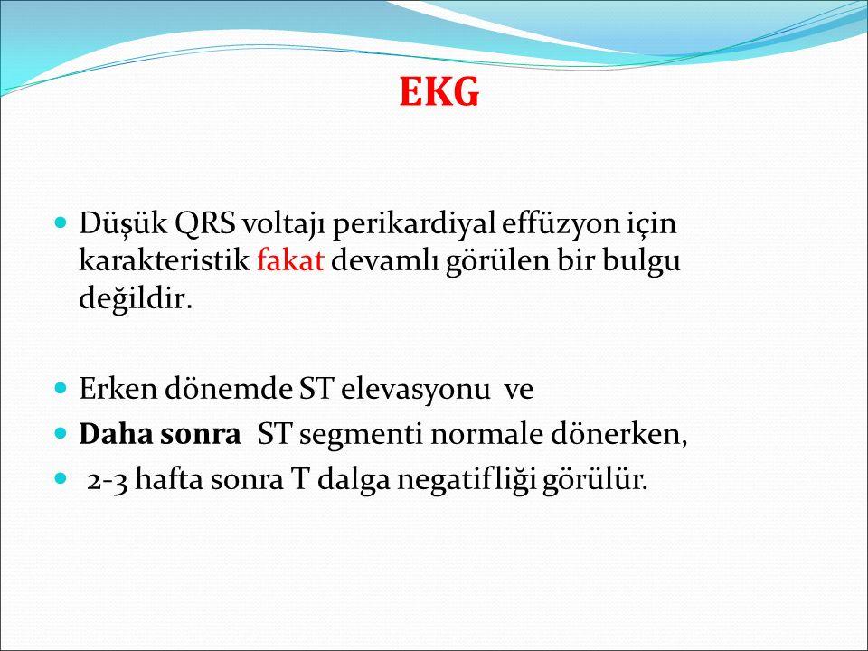 EKG Düşük QRS voltajı perikardiyal effüzyon için karakteristik fakat devamlı görülen bir bulgu değildir.
