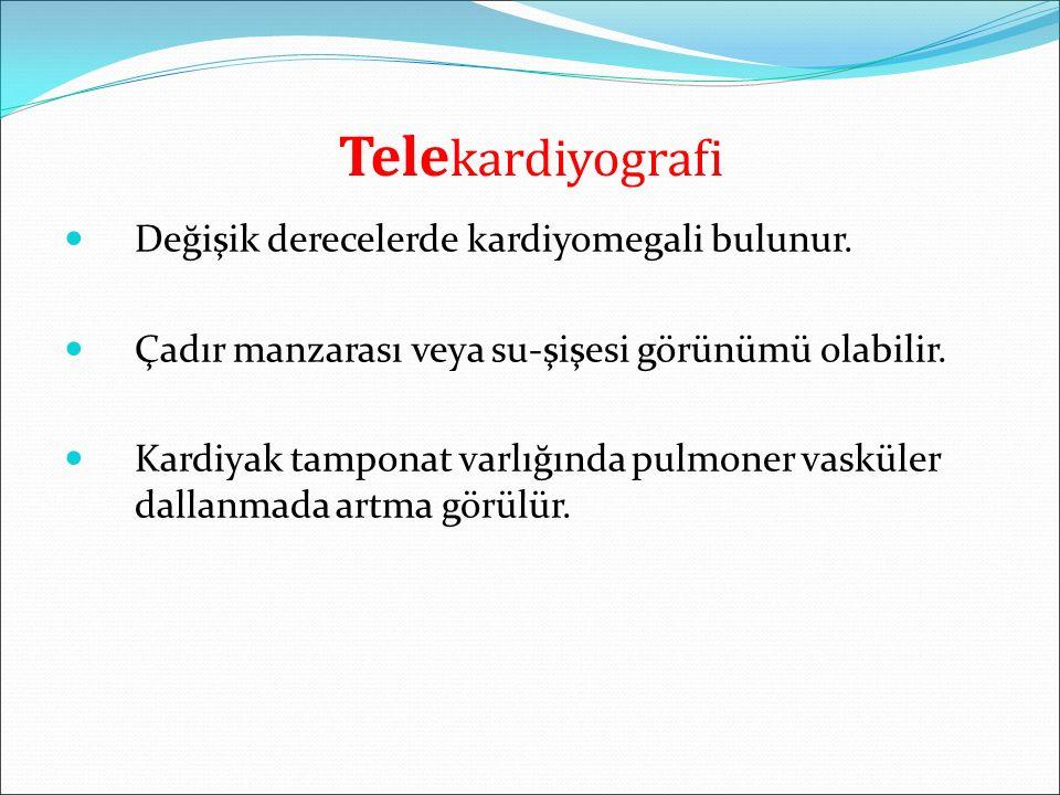 Telekardiyografi Değişik derecelerde kardiyomegali bulunur.