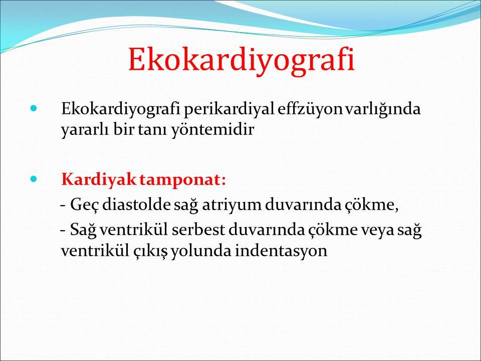 Ekokardiyografi Ekokardiyografi perikardiyal effzüyon varlığında yararlı bir tanı yöntemidir. Kardiyak tamponat: