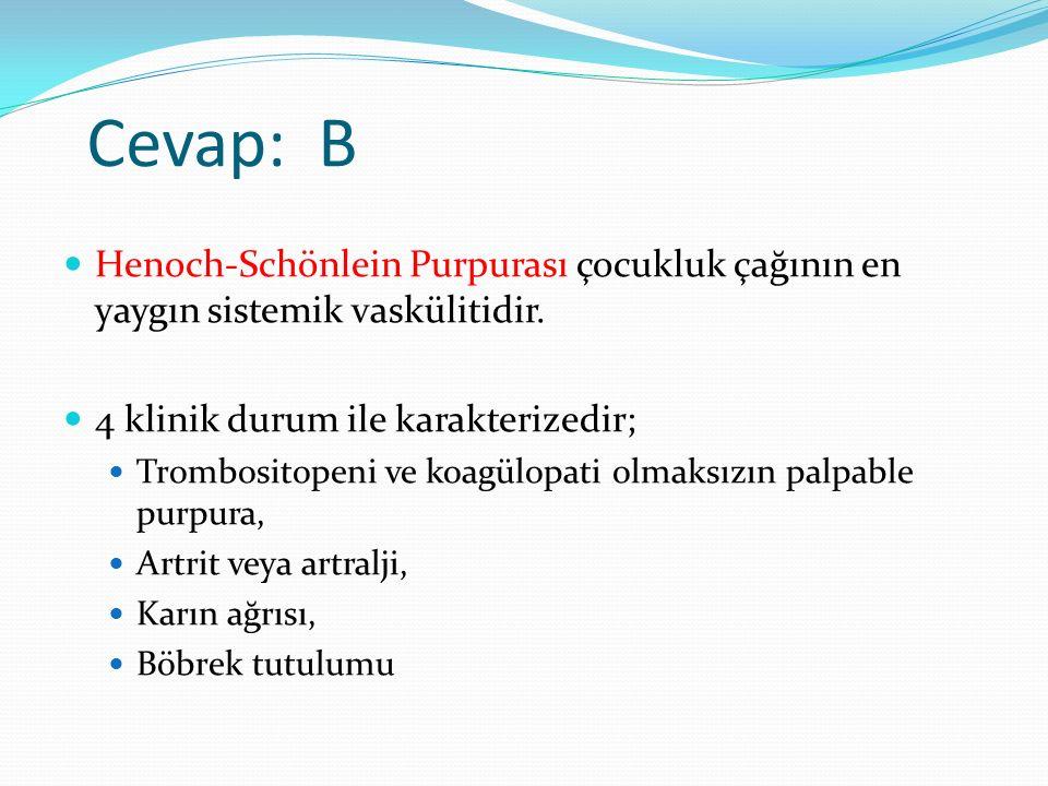 Cevap: B Henoch-Schönlein Purpurası çocukluk çağının en yaygın sistemik vaskülitidir. 4 klinik durum ile karakterizedir;