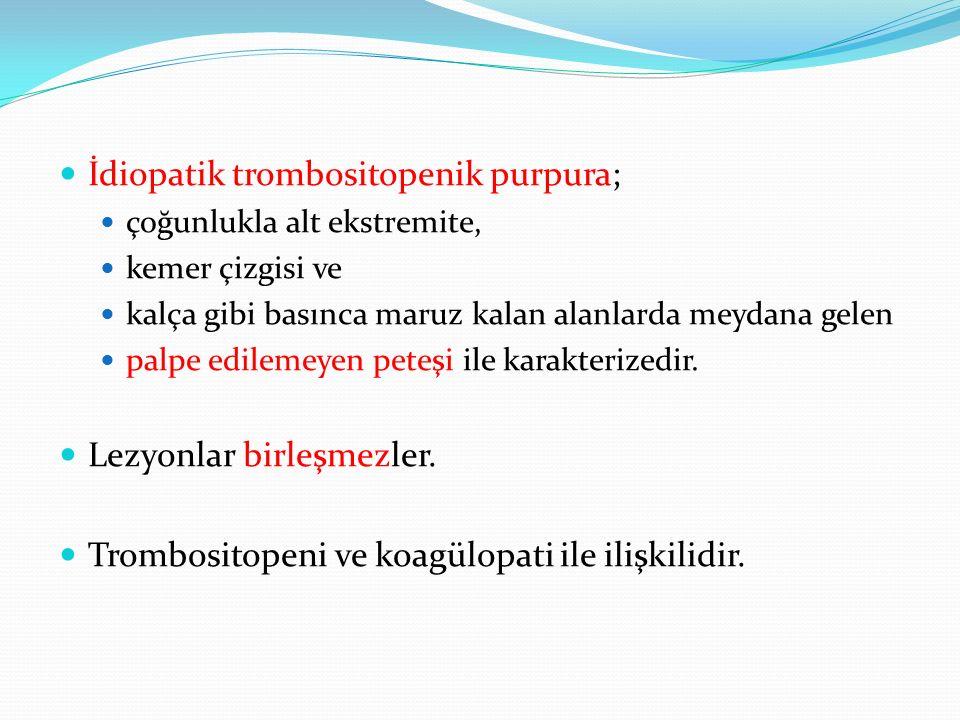 İdiopatik trombositopenik purpura;