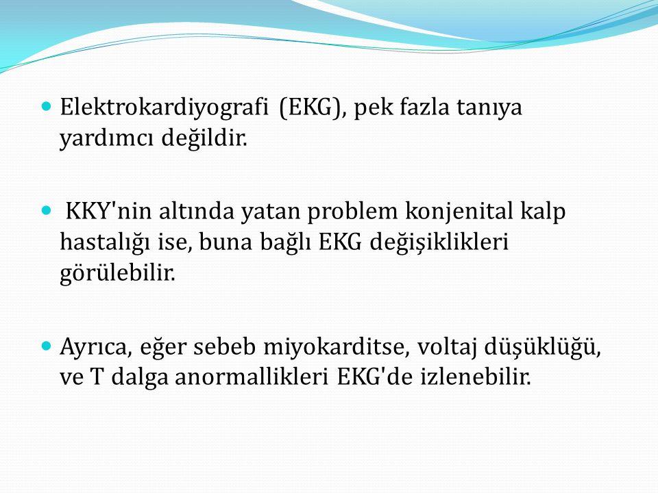 Elektrokardiyografi (EKG), pek fazla tanıya yardımcı değildir.
