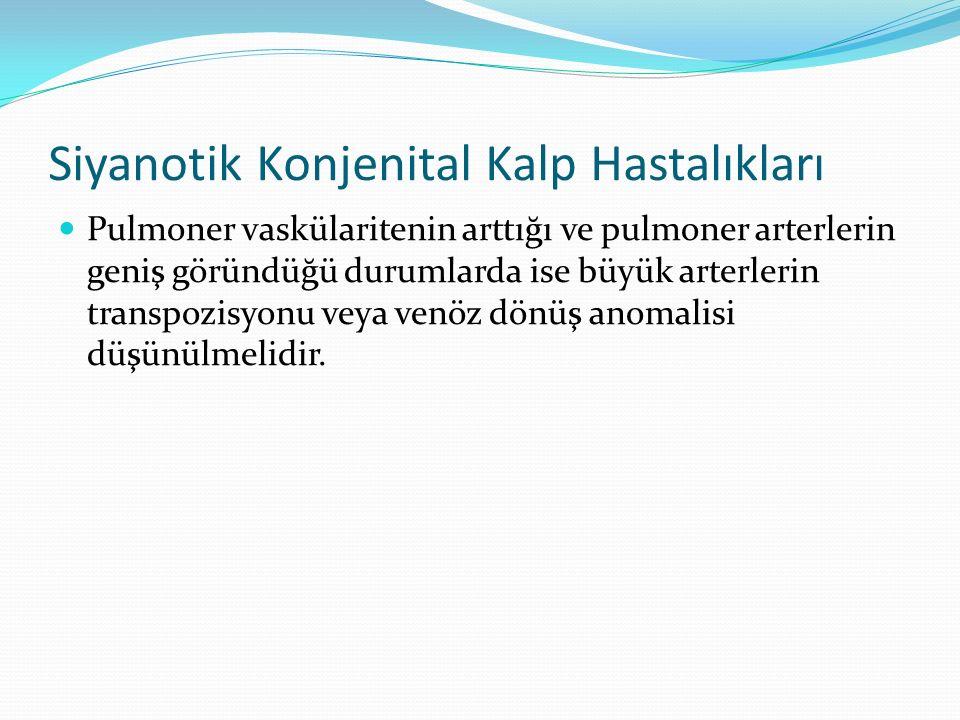 Siyanotik Konjenital Kalp Hastalıkları