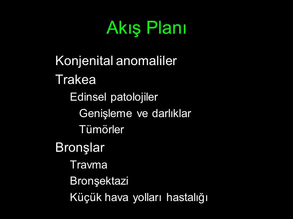 Akış Planı Konjenital anomaliler Trakea Bronşlar Edinsel patolojiler
