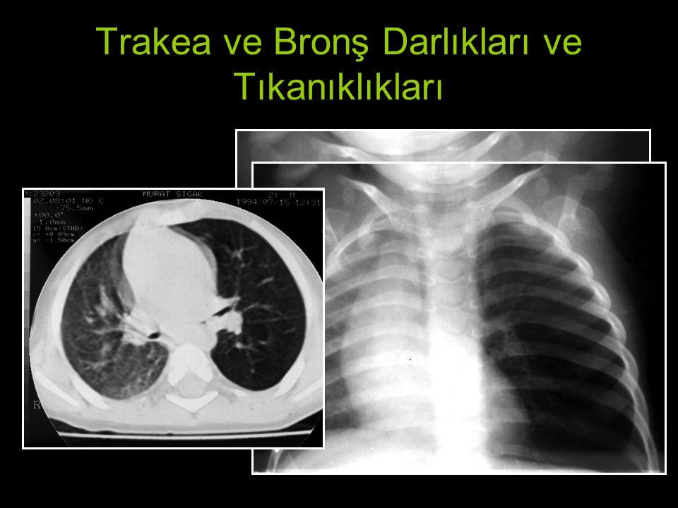Trakea ve Bronş Darlıkları ve Tıkanıklıkları