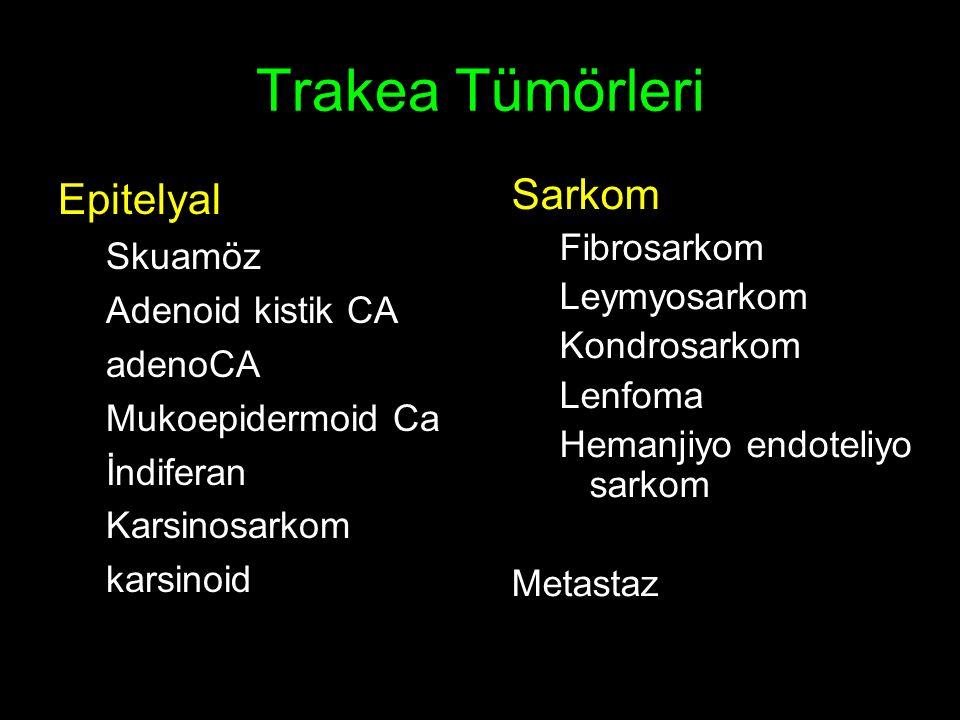 Trakea Tümörleri Epitelyal Sarkom Skuamöz Fibrosarkom Leymyosarkom