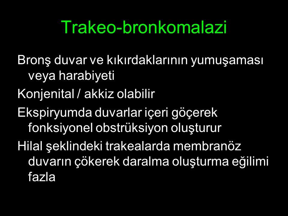 Trakeo-bronkomalazi Bronş duvar ve kıkırdaklarının yumuşaması veya harabiyeti. Konjenital / akkiz olabilir.