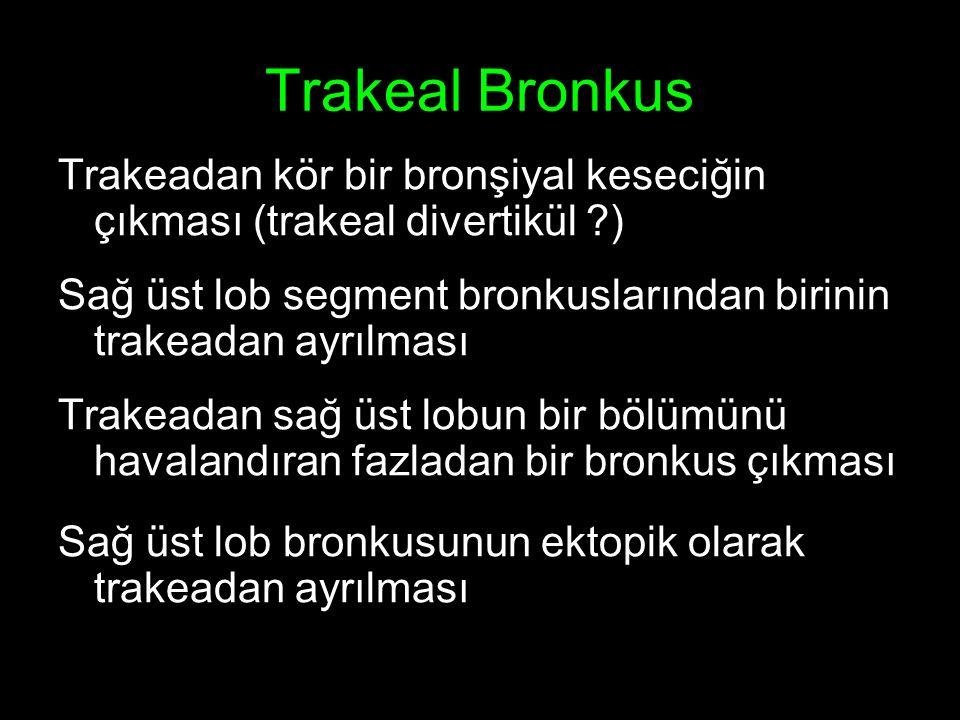 Trakeal Bronkus Trakeadan kör bir bronşiyal keseciğin çıkması (trakeal divertikül ) Sağ üst lob segment bronkuslarından birinin trakeadan ayrılması.