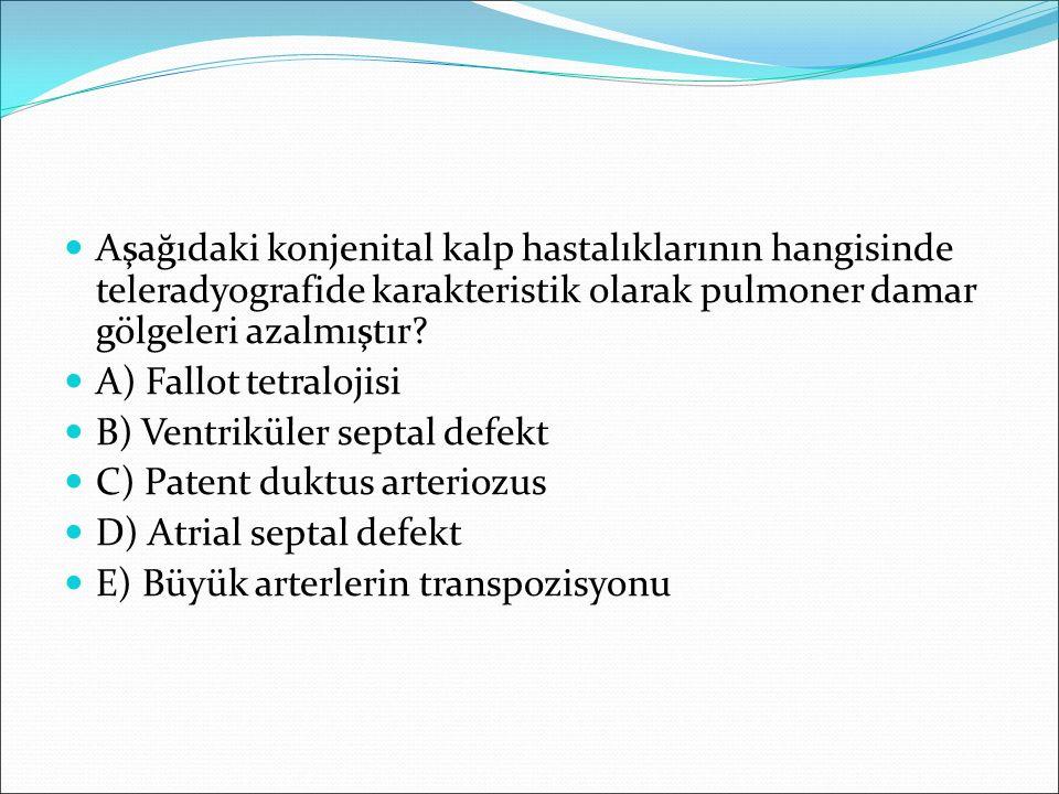 Aşağıdaki konjenital kalp hastalıklarının hangisinde teleradyografide karakteristik olarak pulmoner damar gölgeleri azalmıştır
