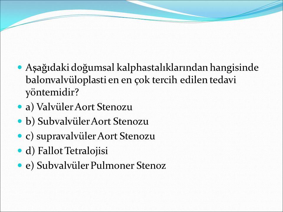 Aşağıdaki doğumsal kalphastalıklarından hangisinde balonvalvüloplasti en en çok tercih edilen tedavi yöntemidir