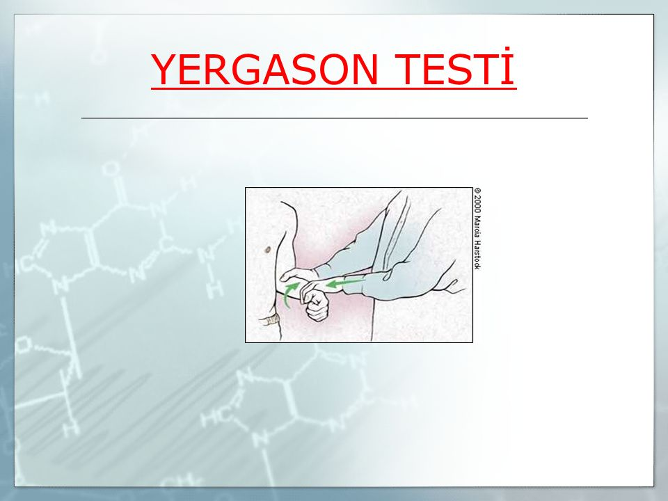 YERGASON TESTİ