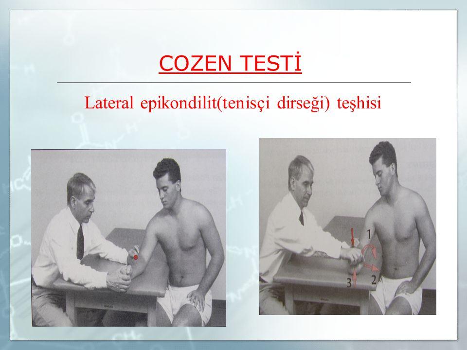 Lateral epikondilit(tenisçi dirseği) teşhisi