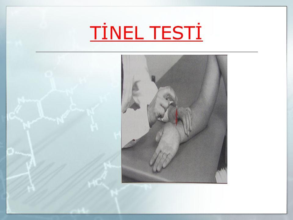 TİNEL TESTİ