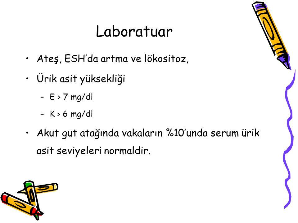 Laboratuar Ateş, ESH'da artma ve lökositoz, Ürik asit yüksekliği