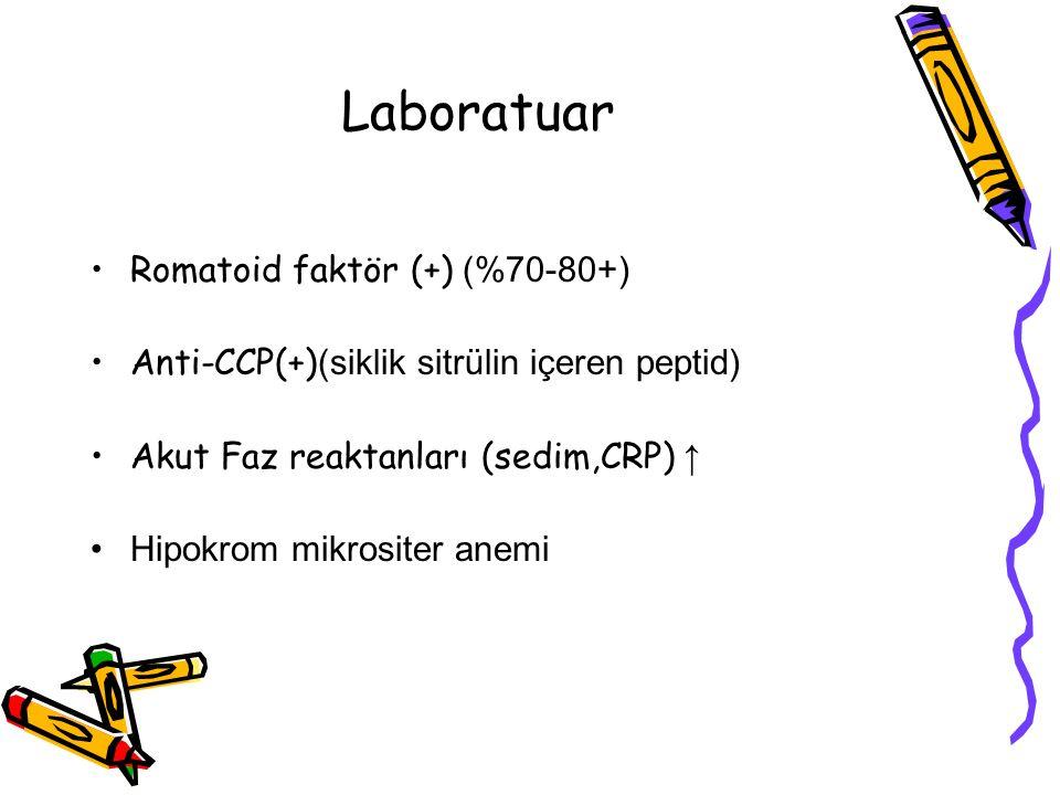 Laboratuar Romatoid faktör (+) (%70-80+)