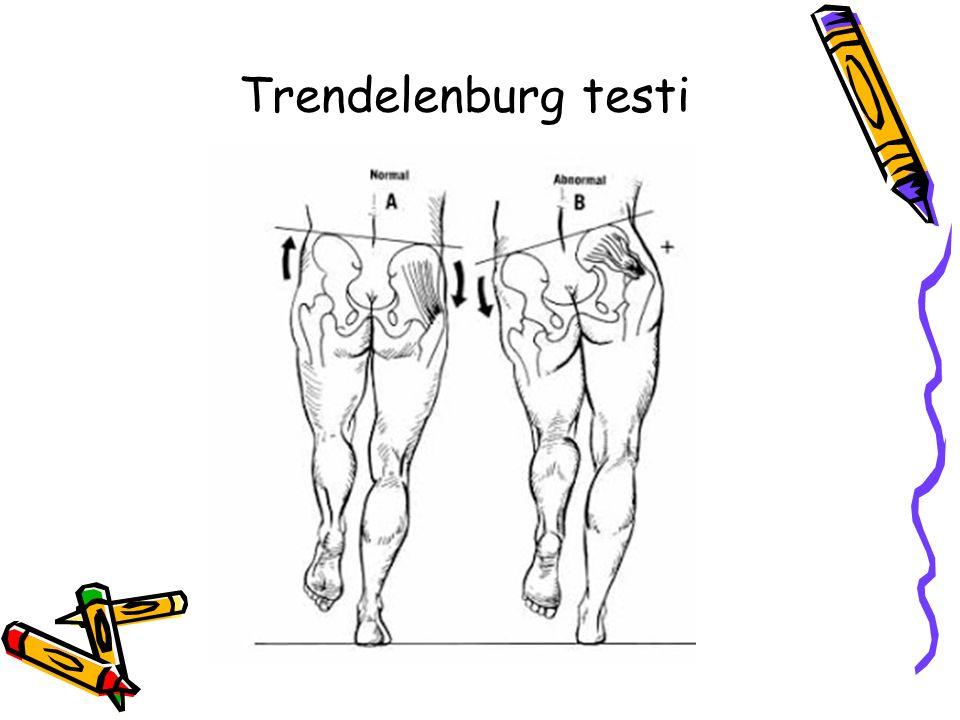 Trendelenburg testi