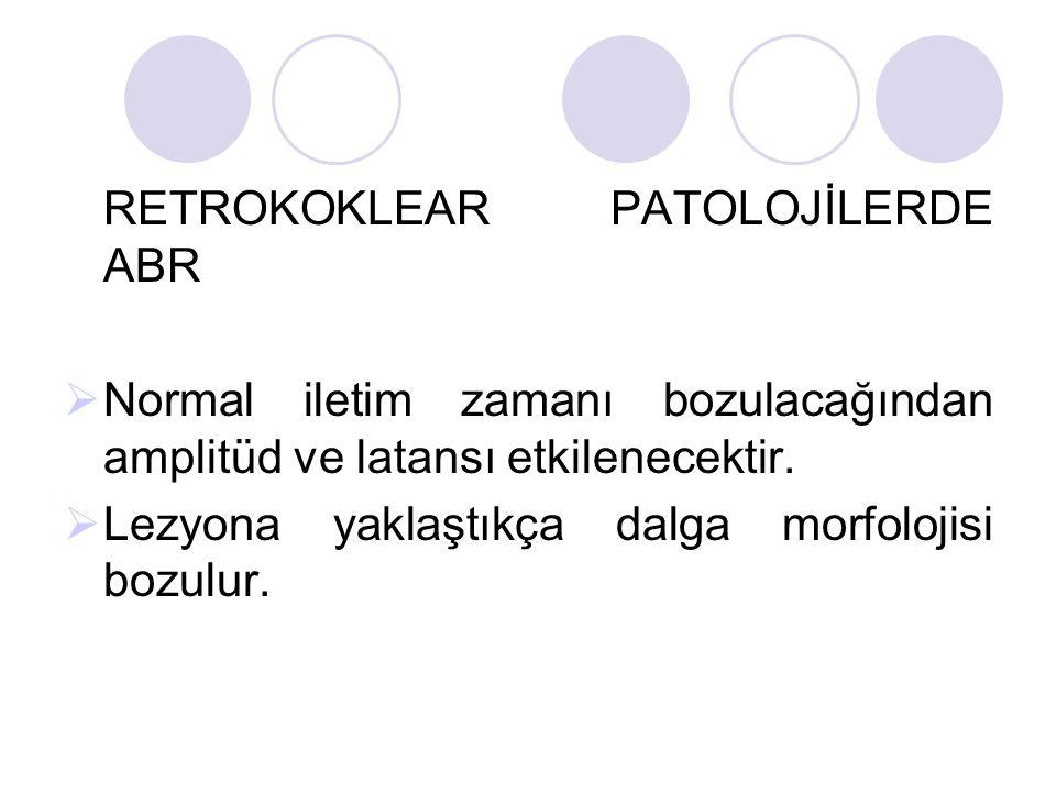 RETROKOKLEAR PATOLOJİLERDE ABR