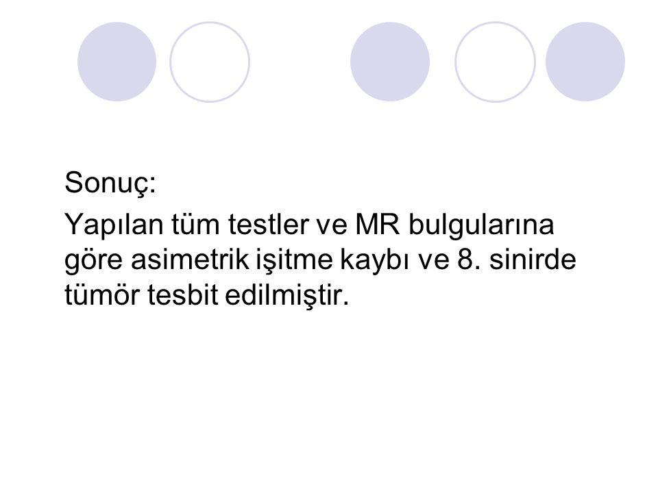 Sonuç: Yapılan tüm testler ve MR bulgularına göre asimetrik işitme kaybı ve 8.
