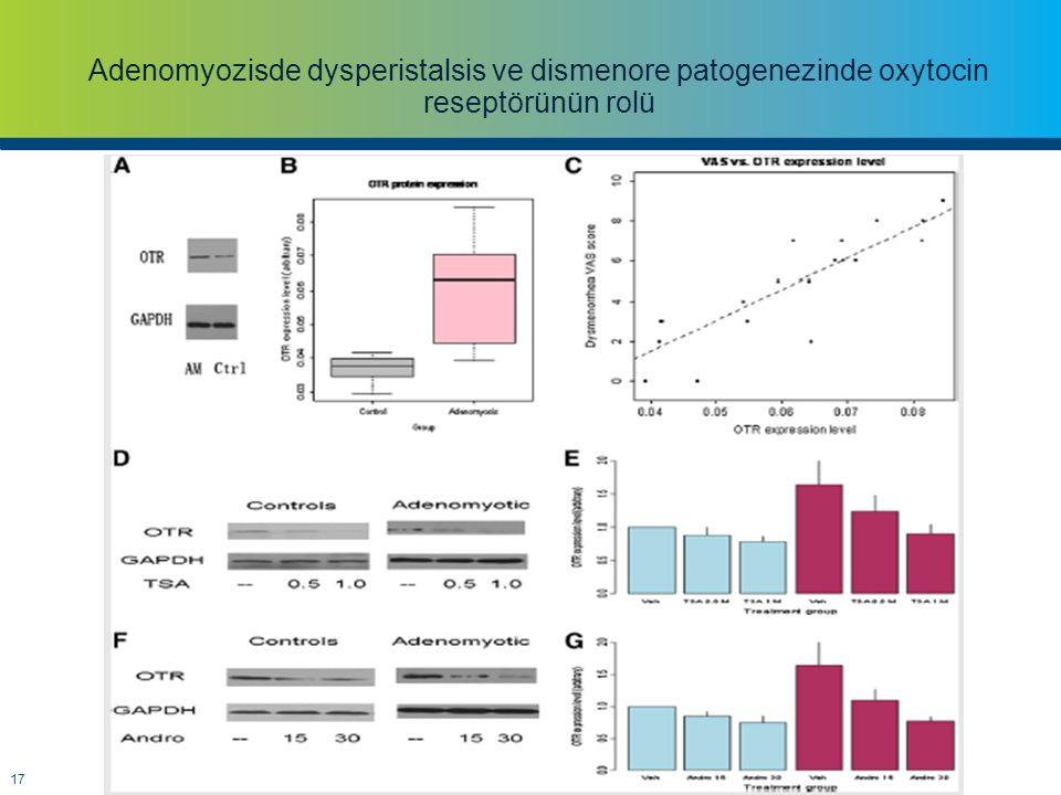 Adenomyozisde dysperistalsis ve dismenore patogenezinde oxytocin reseptörünün rolü