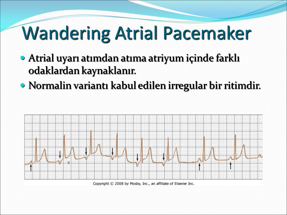 Wandering Atrial Pacemaker