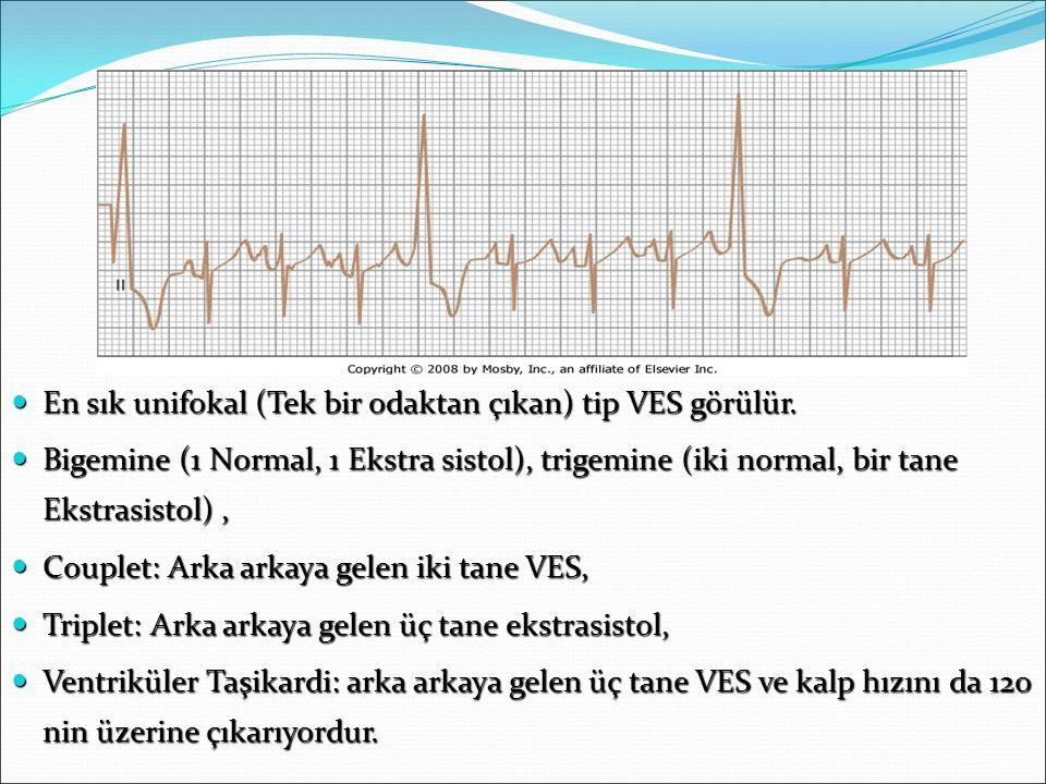 VES En sık unifokal (Tek bir odaktan çıkan) tip VES görülür.