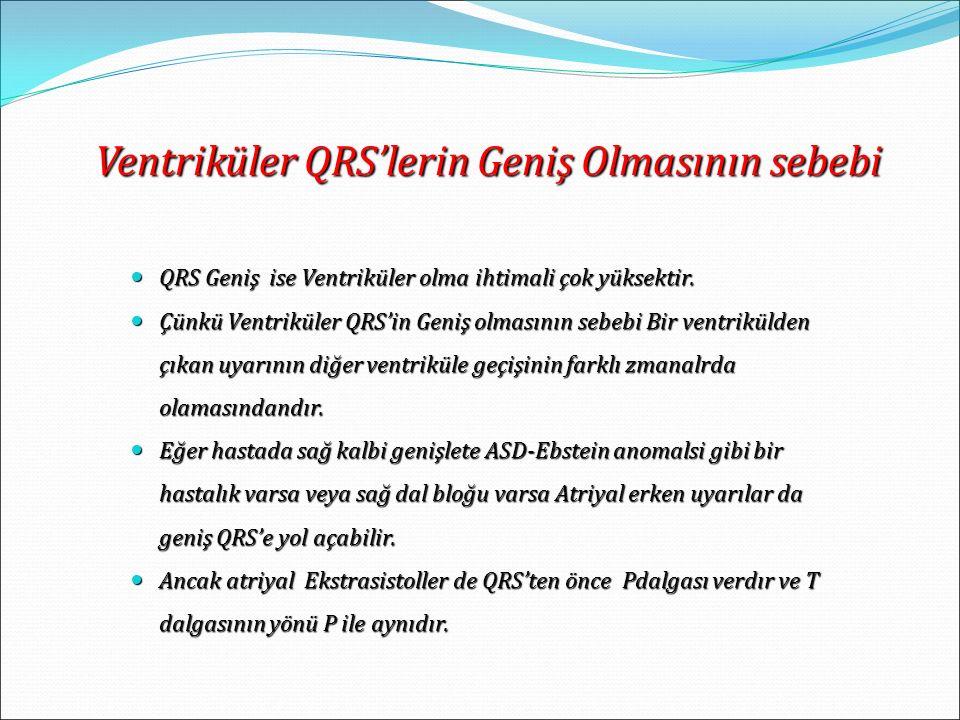 Ventriküler QRS'lerin Geniş Olmasının sebebi