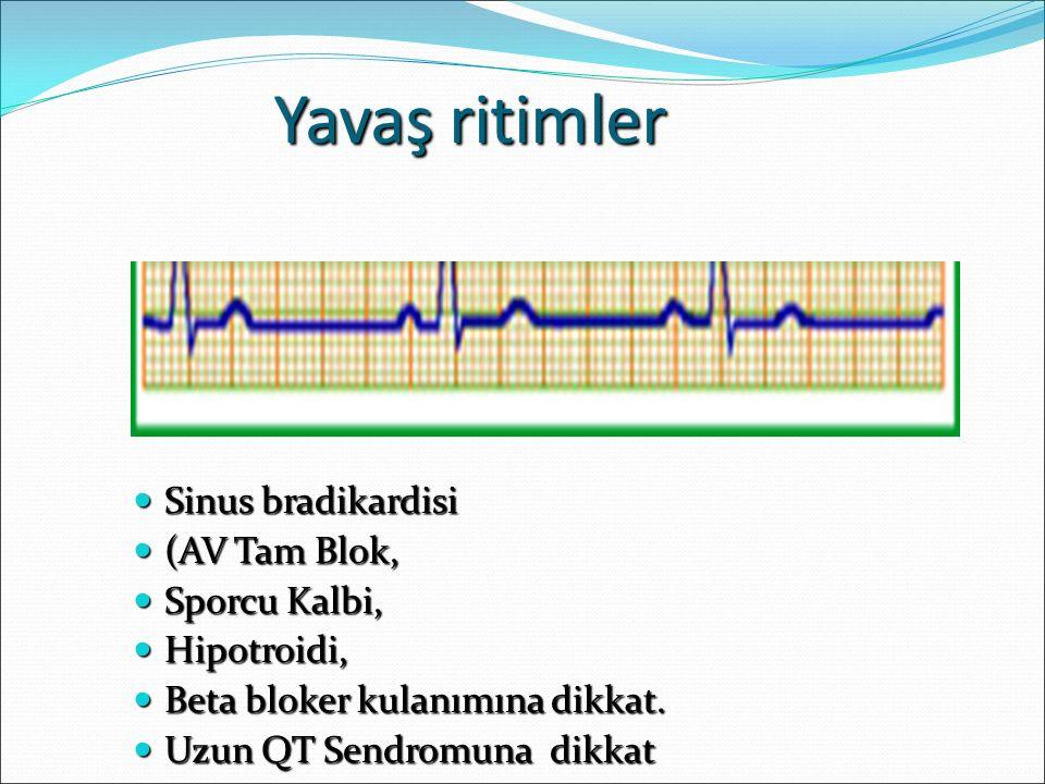 Yavaş ritimler Sinus bradikardisi (AV Tam Blok, Sporcu Kalbi,