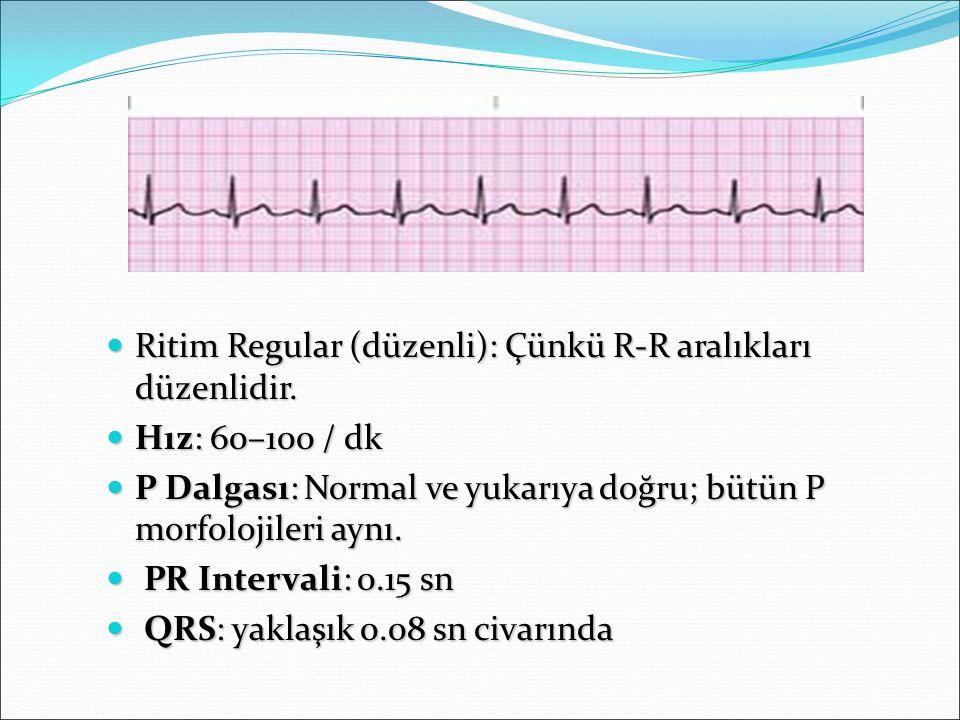 Ritim Regular (düzenli): Çünkü R-R aralıkları düzenlidir.