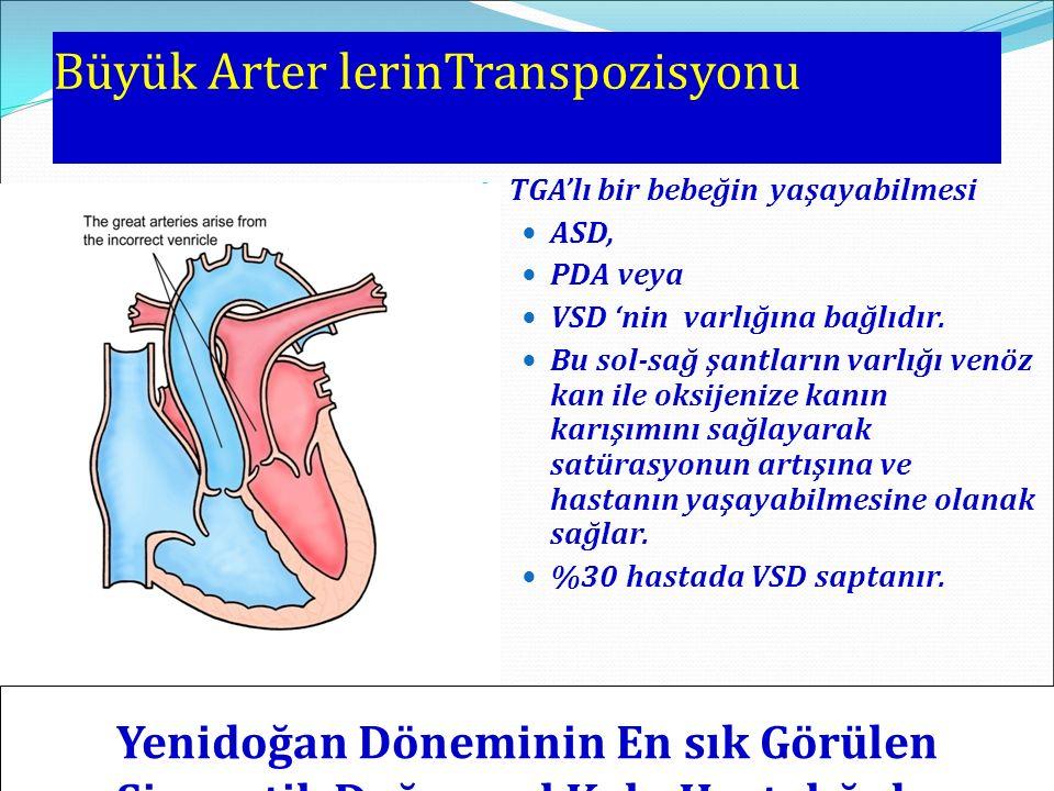 Büyük Arter lerinTranspozisyonu