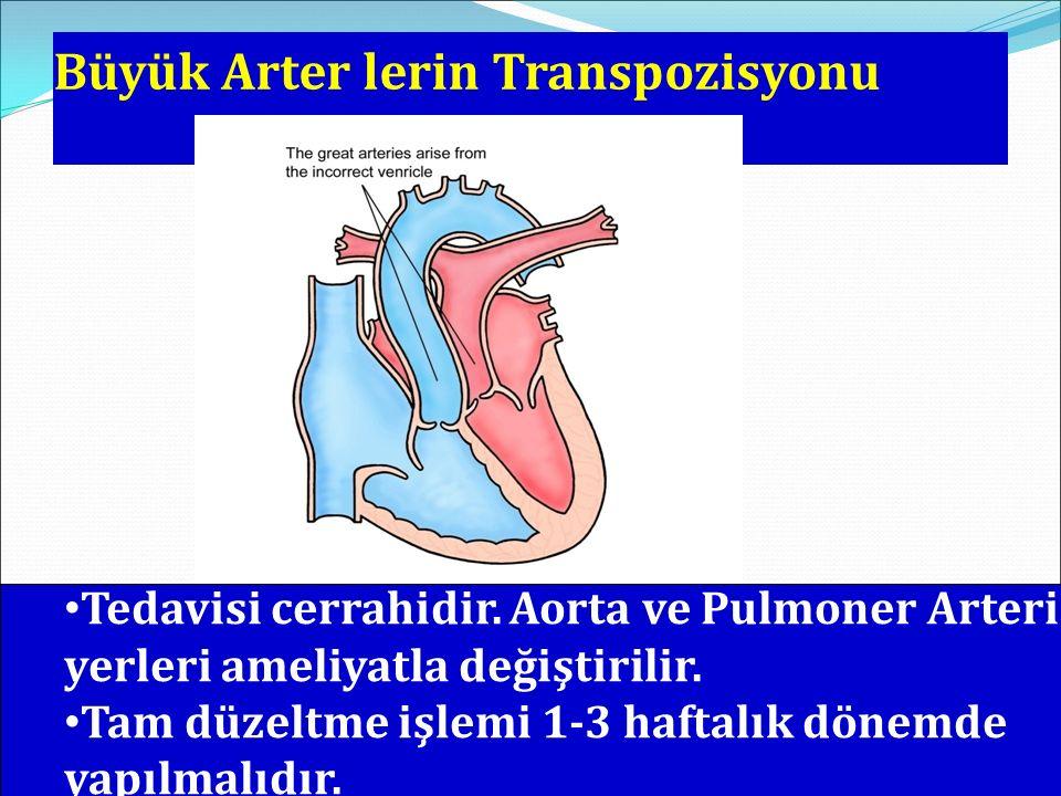 Büyük Arter lerin Transpozisyonu