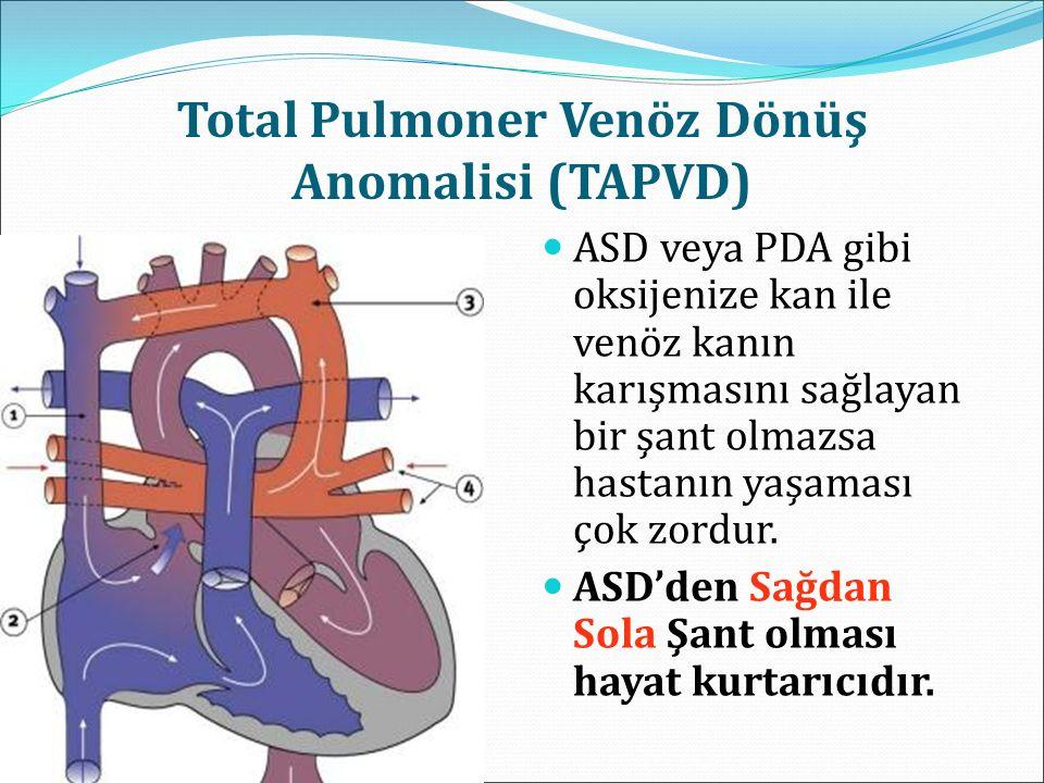 Total Pulmoner Venöz Dönüş Anomalisi (TAPVD)