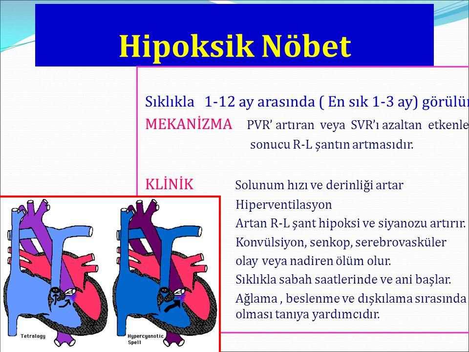 Hipoksik Nöbet Sıklıkla 1-12 ay arasında ( En sık 1-3 ay) görülür.