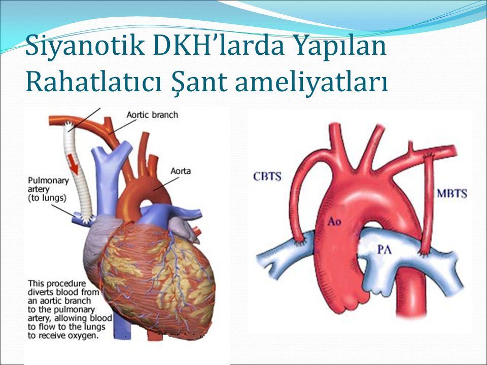 Siyanotik DKH'larda Yapılan Rahatlatıcı Şant ameliyatları