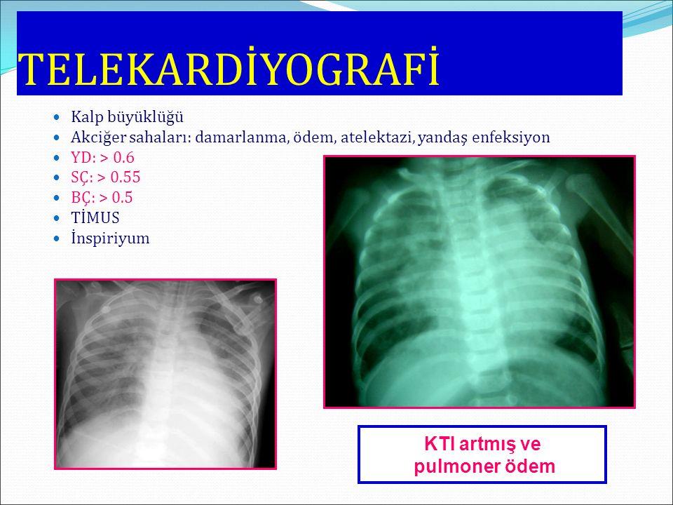 TELEKARDİYOGRAFİ KTI artmış ve pulmoner ödem Kalp büyüklüğü