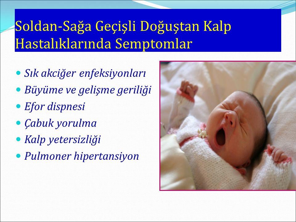 Soldan-Sağa Geçişli Doğuştan Kalp Hastalıklarında Semptomlar