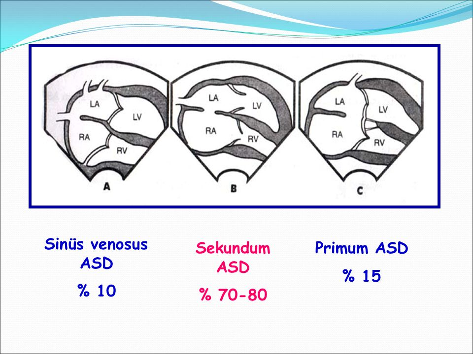Sinüs venosus ASD % 10 Sekundum ASD % 70-80 Primum ASD % 15