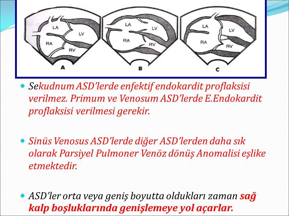 Sekudnum ASD'lerde enfektif endokardit proflaksisi verilmez
