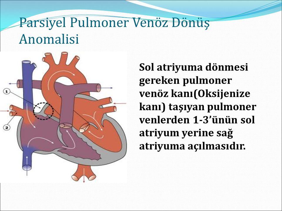 Parsiyel Pulmoner Venöz Dönüş Anomalisi