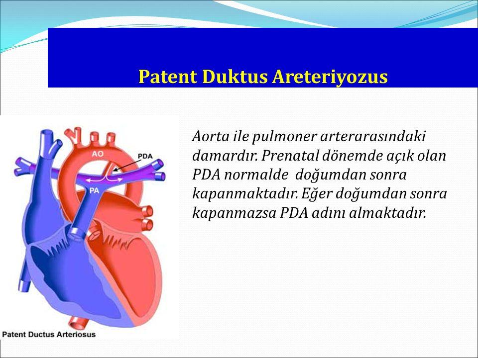 Patent Duktus Areteriyozus