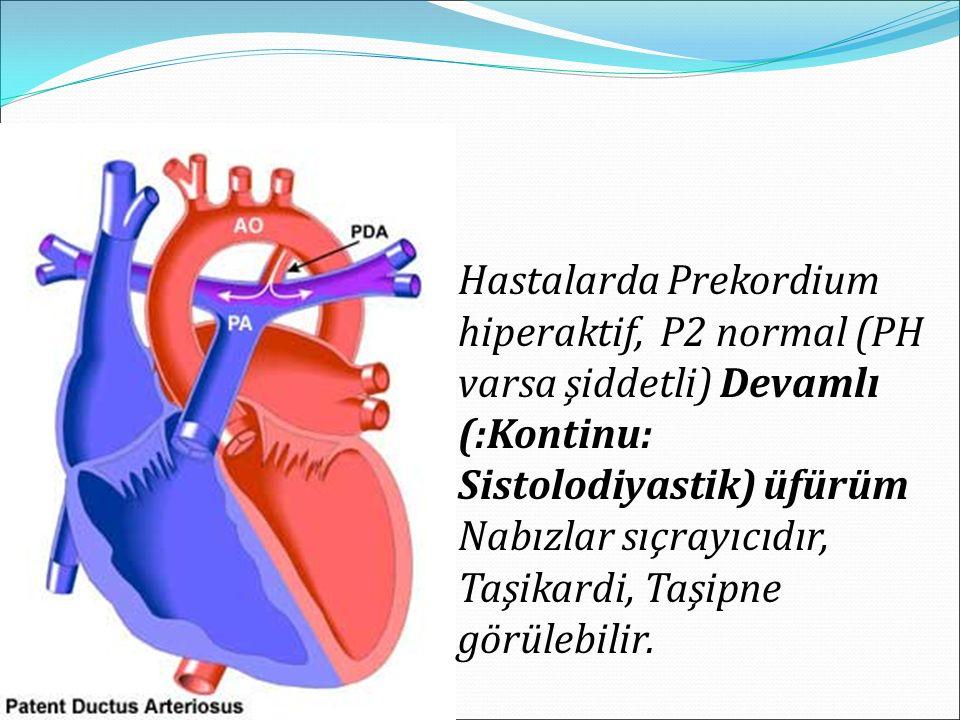 Hastalarda Prekordium hiperaktif, P2 normal (PH varsa şiddetli) Devamlı (:Kontinu: Sistolodiyastik) üfürüm Nabızlar sıçrayıcıdır, Taşikardi, Taşipne görülebilir.