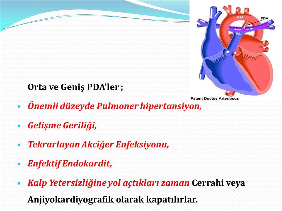 Orta ve Geniş PDA'ler ; Önemli düzeyde Pulmoner hipertansiyon, Gelişme Geriliği, Tekrarlayan Akciğer Enfeksiyonu,
