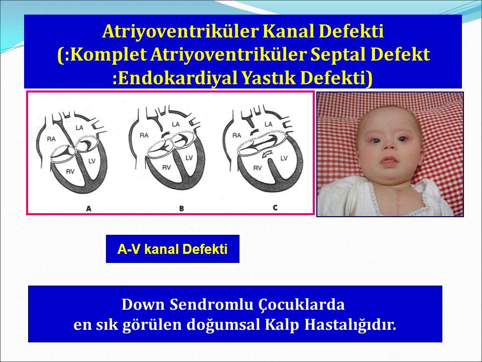 Down Sendromlu Çocuklarda en sık görülen doğumsal Kalp Hastalığıdır.