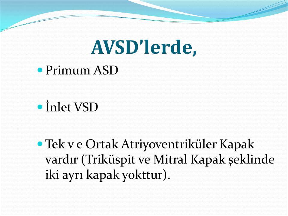 AVSD'lerde, Primum ASD İnlet VSD