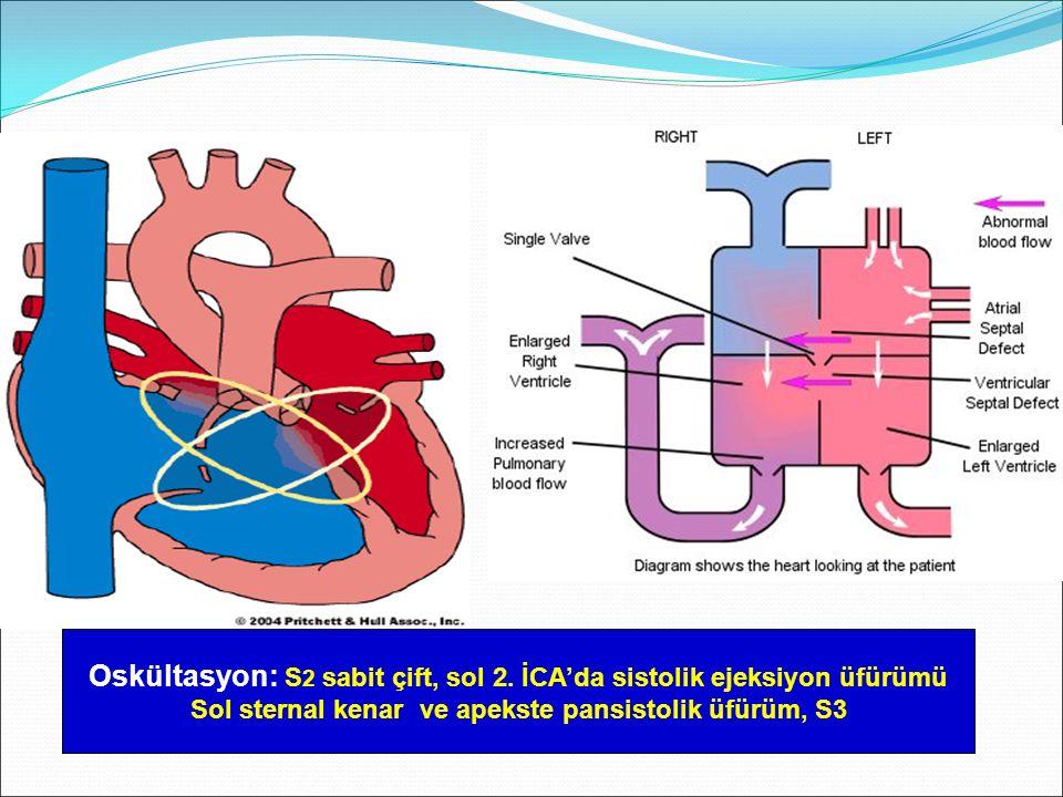 Oskültasyon: S2 sabit çift, sol 2. İCA'da sistolik ejeksiyon üfürümü