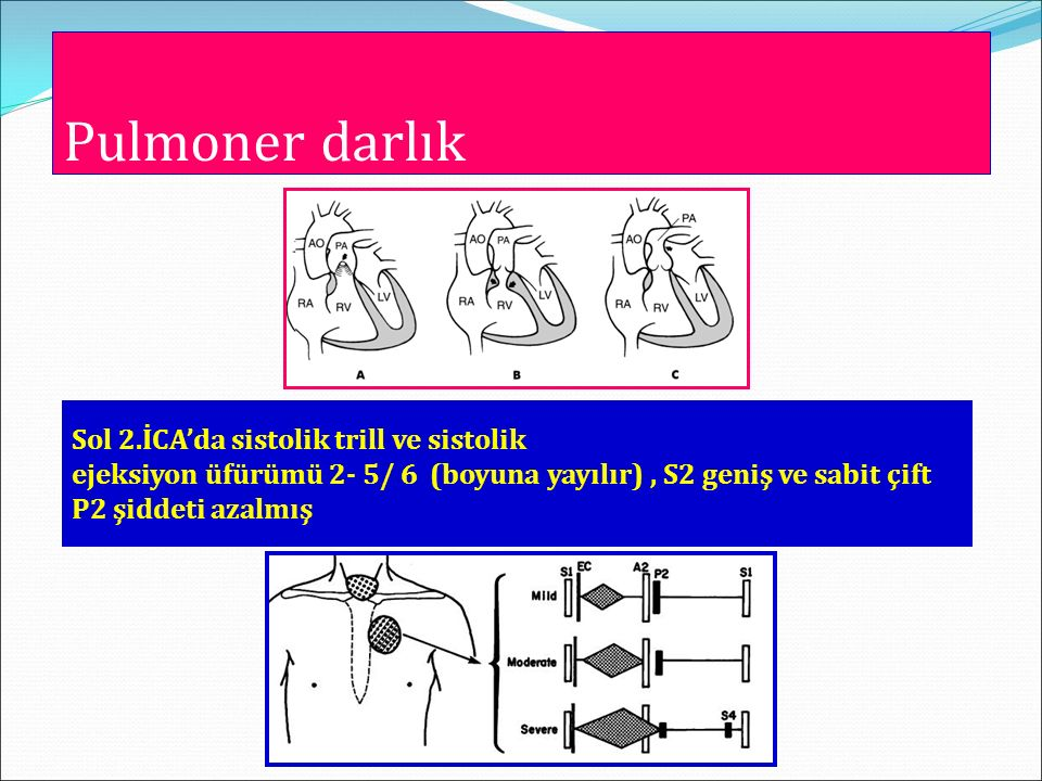 Pulmoner darlık Sol 2.İCA'da sistolik trill ve sistolik