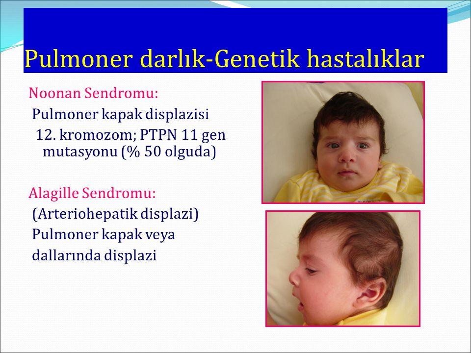 Pulmoner darlık-Genetik hastalıklar