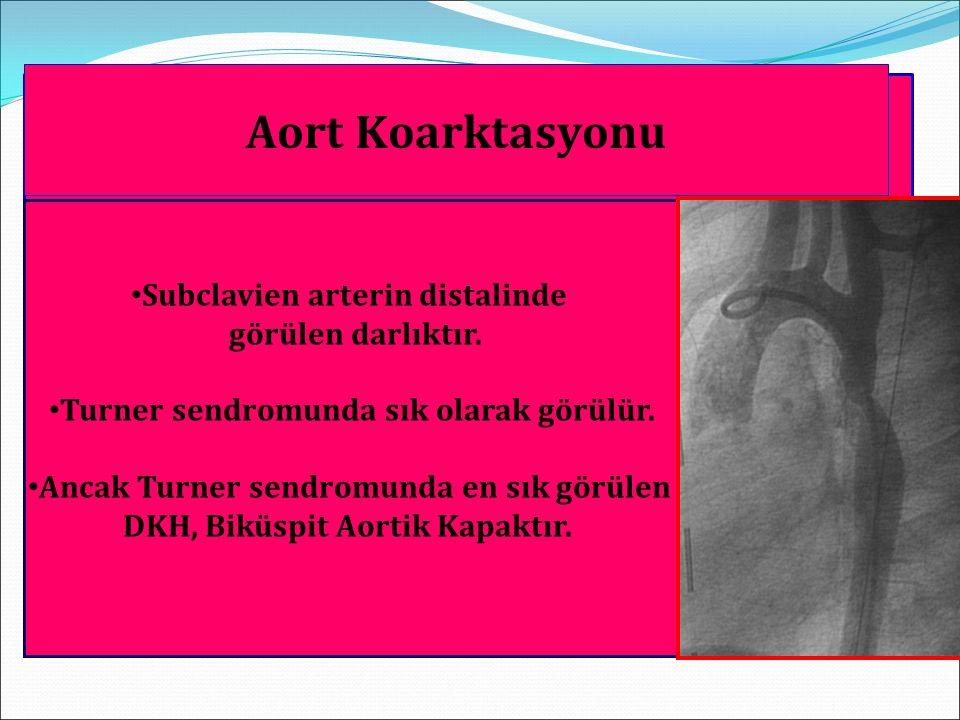 Doğuştan Darlıklı Kalp Hastalıkları